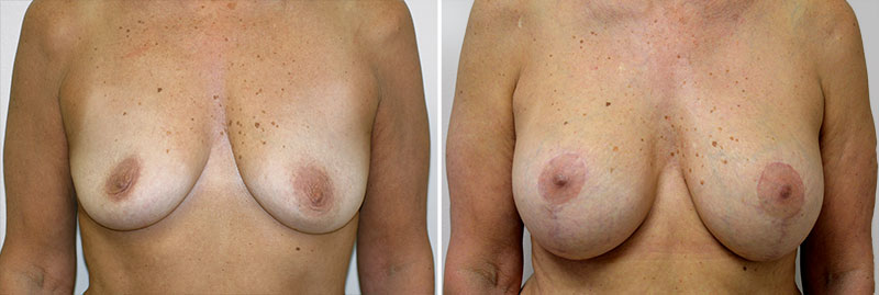 Breast Lift with Augmentation Patient 4