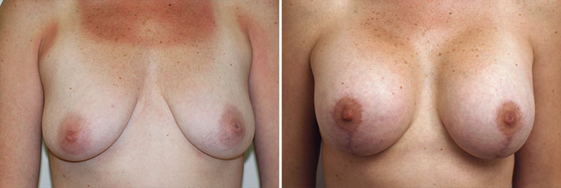 Breast Lift with Augmentation Patient 3