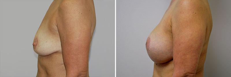 breast-mastopexy-with-augmentation-02c-r