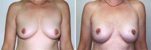 Breast Reconstruction Patient 1