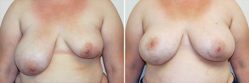 Breast Asymmetry Patient 1