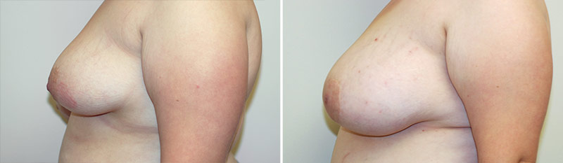 breast-reduction-07b-left-asymmetry