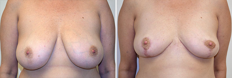 Breast Reduction Patient 11