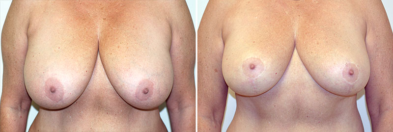 Breast Reduction Patient 12