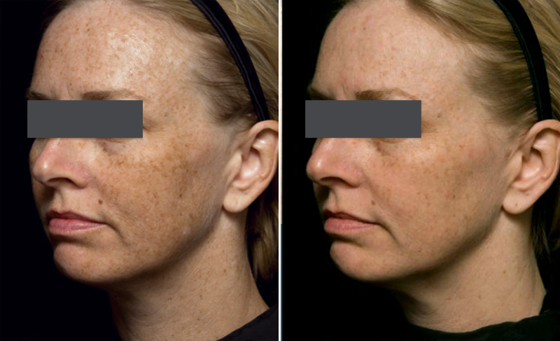 eMatrix Skin Resurfacing Patient 6