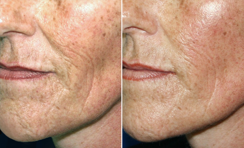 eMatrix Skin Resurfacing Patient 7