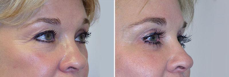 eyes-upper-blepharplasty-03b-moses