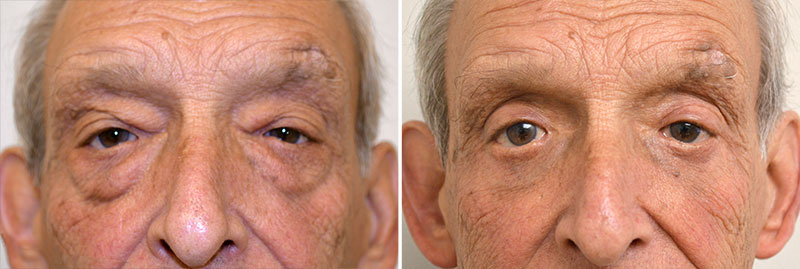Eyelid Surgery Patient 4