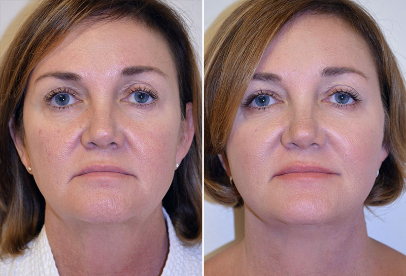 facelift-fat-graft-cheeks-upper-bleph-07a-moses