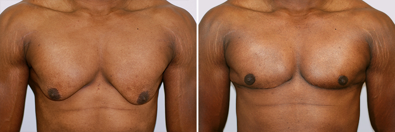 Male Breast Reduction Patient 2