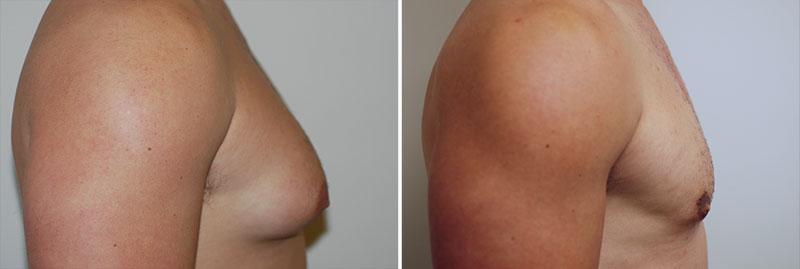 gynecomastia-03c