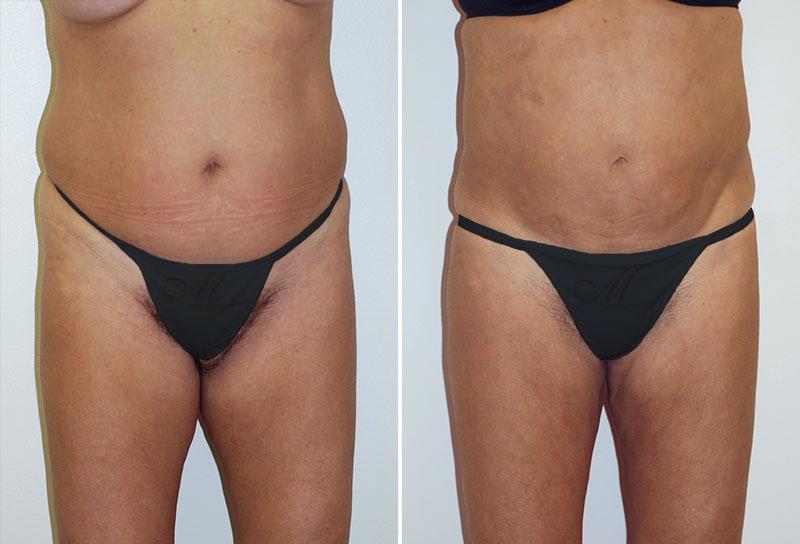Liposuction Patient 1