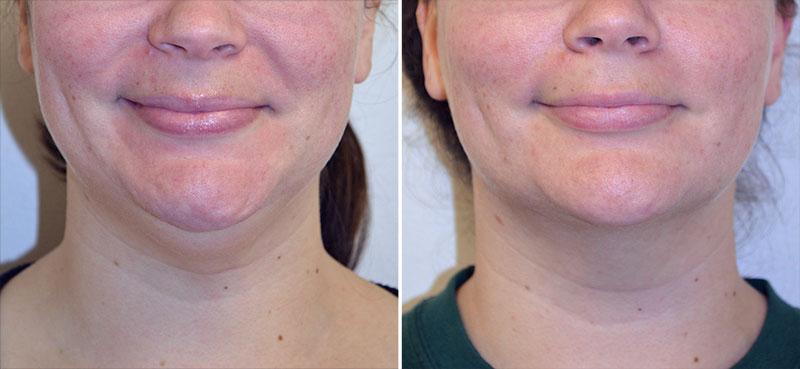 neck-liposuction-01a-moses