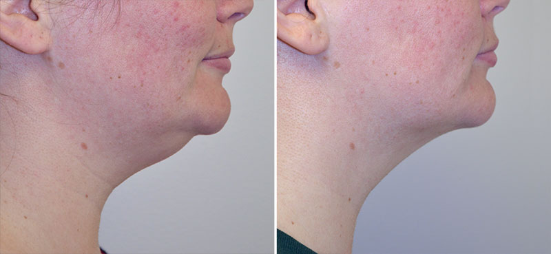 neck-liposuction-01c-right-moses