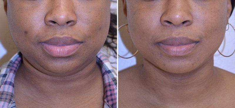 Neck Liposuction Patient 2